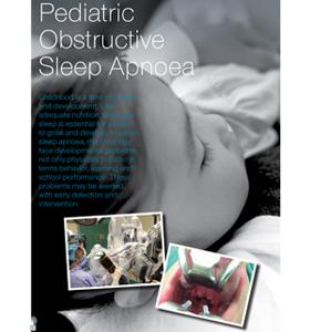 Pediatric Obstructive Sleep Apnoea