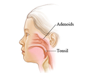 Tonsils and adenoids