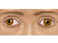"Lazy eye (""amblyopia"")"