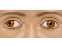 """Lazy eye (""""amblyopia"""")"""