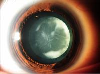 Paediatric cataract & cataract surgery