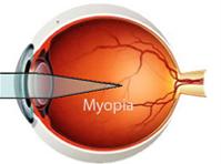 Myopia, hyperopia, astigmatism